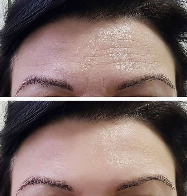 Browlift