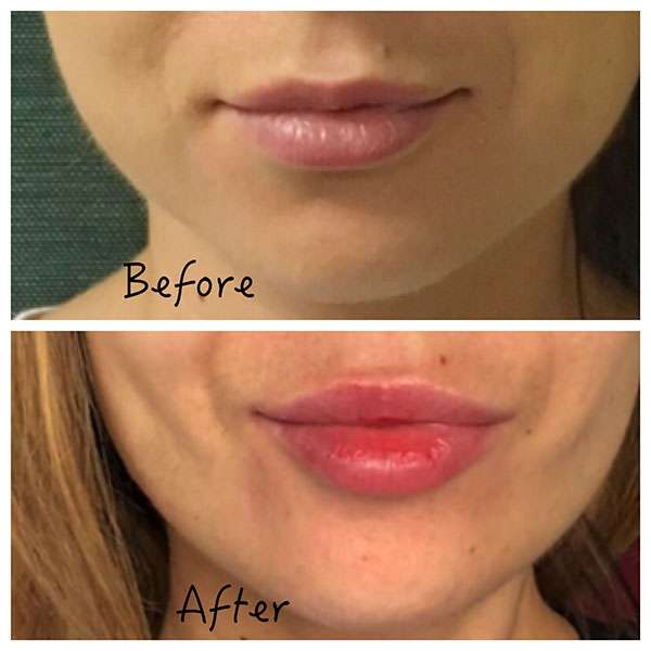 Buccal Fat Pad Removal
