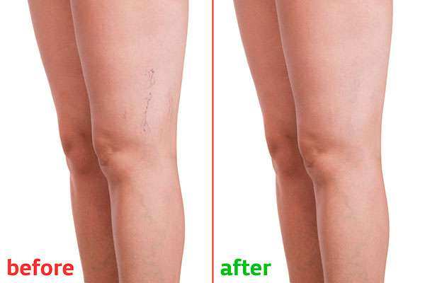 Spider Vein Treatments