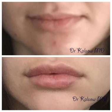 Lip Augmentation or Fillers – Kalsow Plastic Surgery