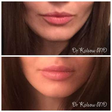 Lip Augmentation or Fillers